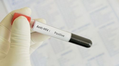 hiv-aids-krv-r309_res.jpg